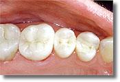 Diş Dolgu